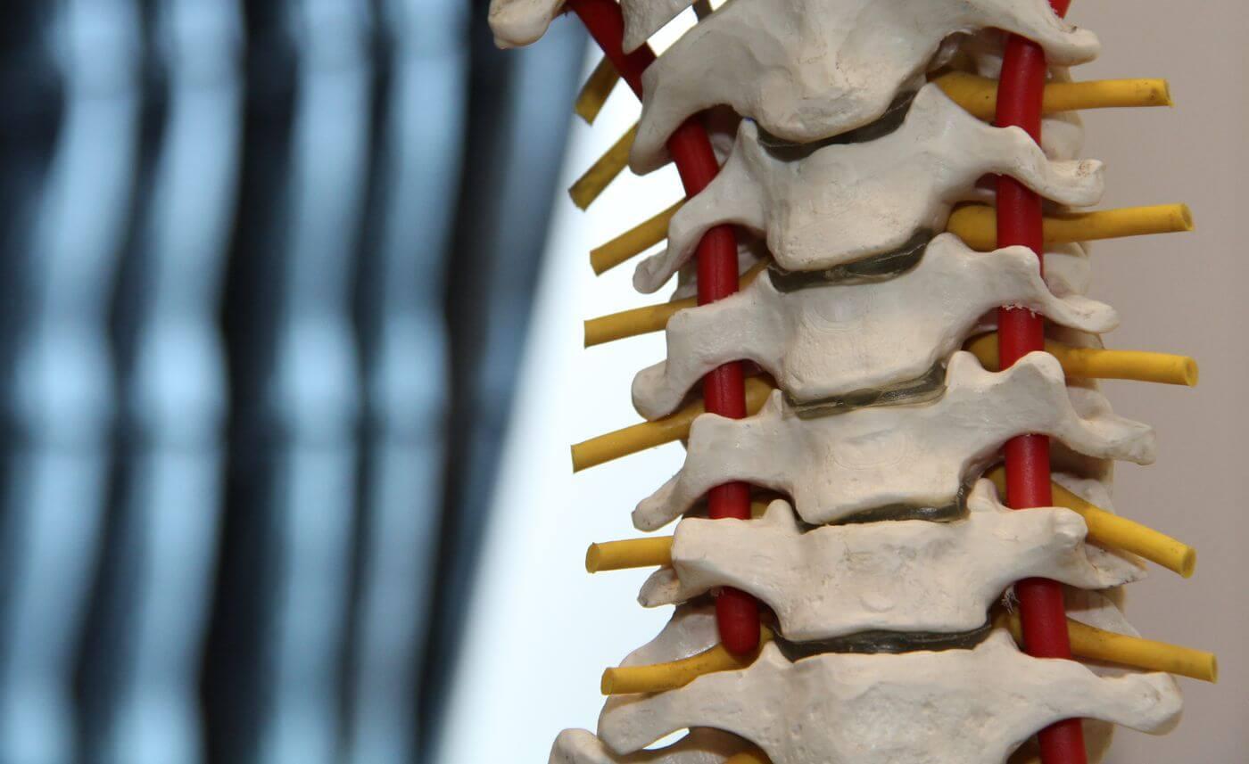 cum se tratează articulațiile coloanei vertebrale